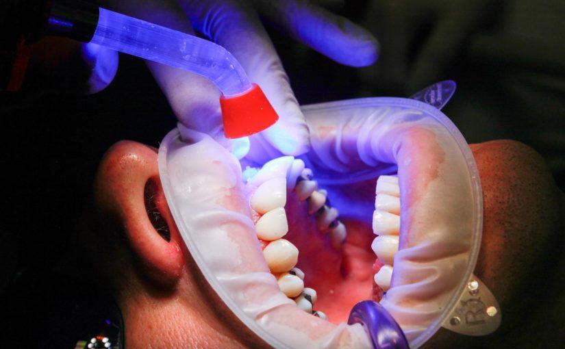 Złe postępowanie odżywiania się to większe ubytki w zębach natomiast także ich brak